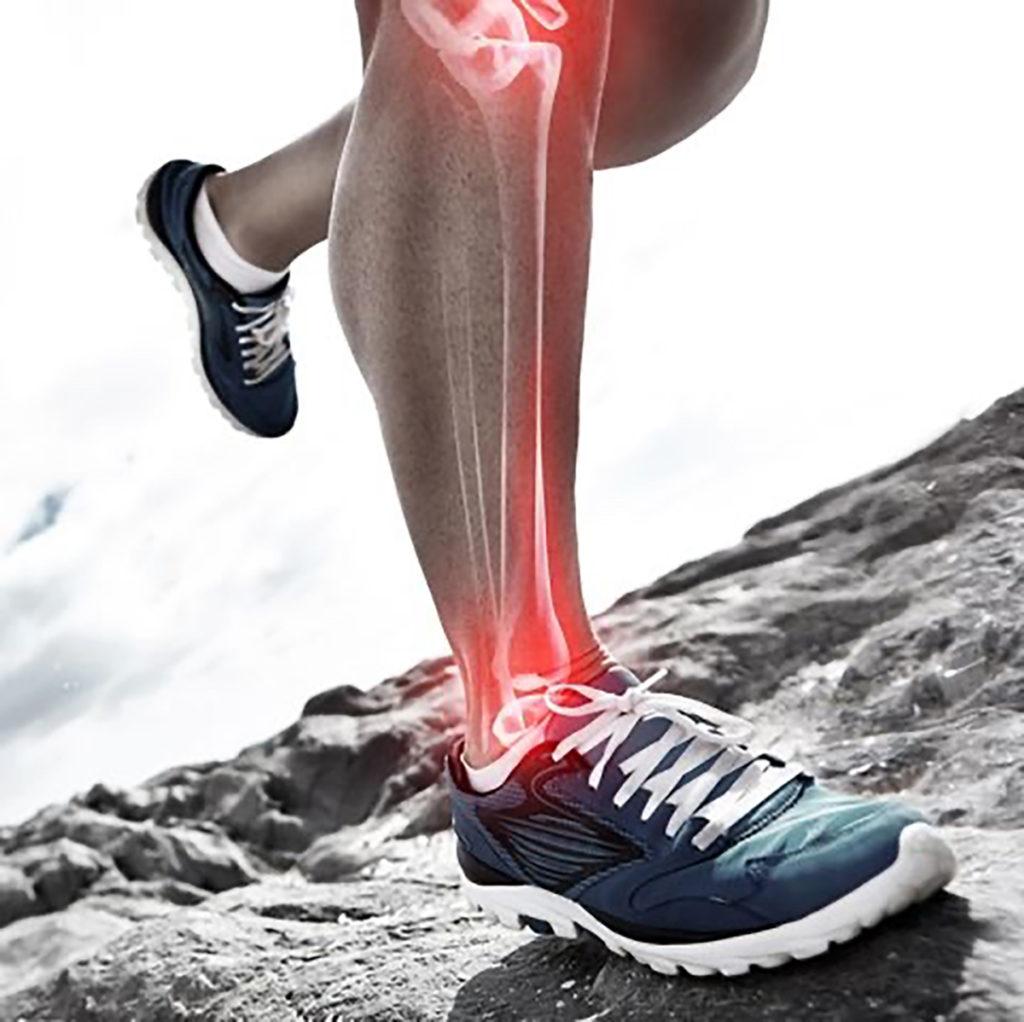 Bone Stress Injuries