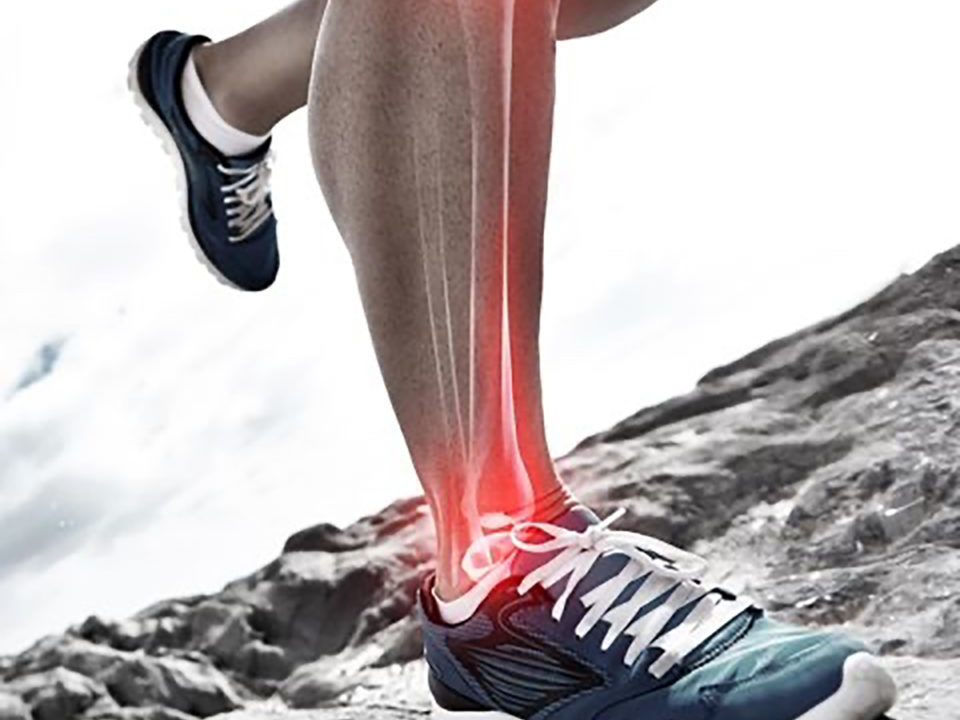 Bone Stress Injuries